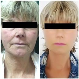 lifting facial cluj